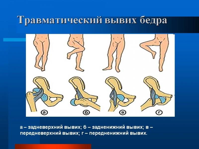 Лечение трещины в тазобедренном суставе в пожилом возрасте