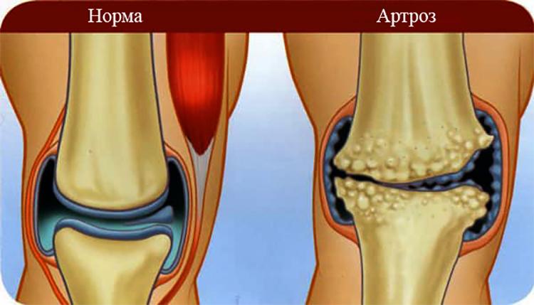 Витамины при артрозе коленного сустава