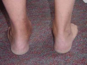 Суставы стопы лечение и особенности заболеваний ног
