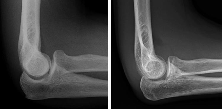 Рентген локтевого сустава фото рентгеновских снимков локтя