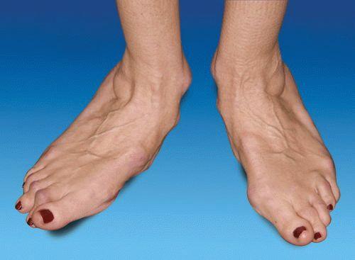 Какие уколы используют при артрите