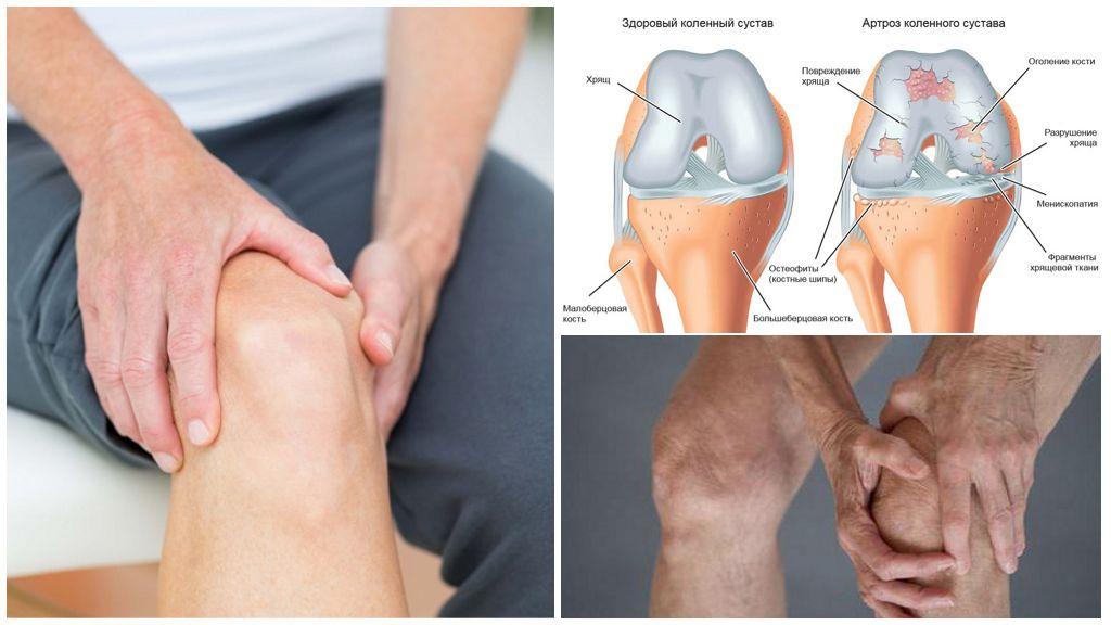 Болезнь гонартроз коленного сустава 146