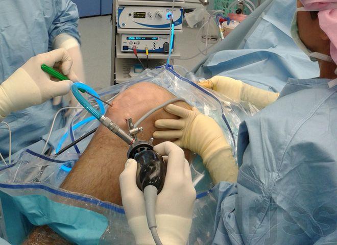 Киста Бейкера коленного сустава. Основные симптомы и способы лечения