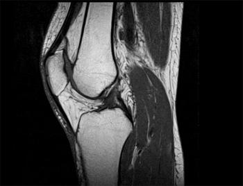 Симптомы и эффективное лечение воспаления связок коленного сустава лигаментит и лигаментоз